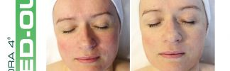 Red-Out Facial at Oasis Day Spa Featured in Dayspa Magazine!